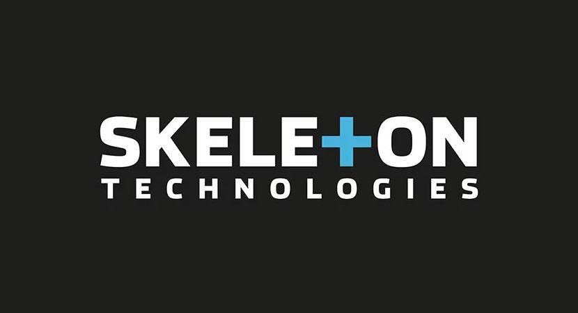Skeleton Technologies investiert weitere 25 Millionen Euro in Großröhrsdorf